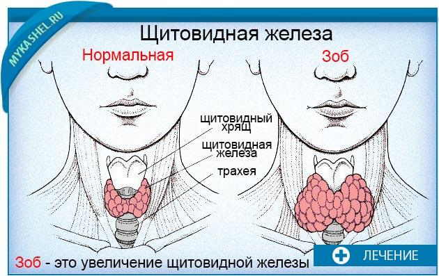 увеличенный зоб щитовидной железы сферам деятельности