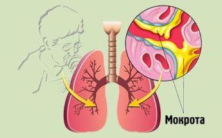Кашель с гнойной мокротой, при каких заболеваниях образуется и каково лечение