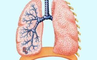Трахеобронхит и кашель у детей и взрослых: основные причины, симптомы, диагностика и правильное лечение