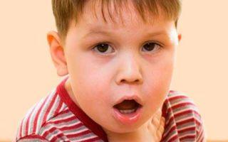 Как и чем лечить лающий кашель у ребенка и что это такое