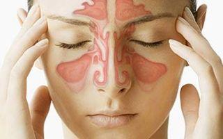 Почему появляется и как лечить кашель при синусите
