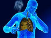 Медикаментозное лечение кашля курильщика