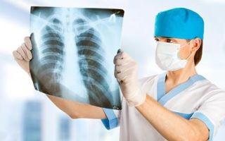 Рентген легких и флюорография легких — все что нужно знать