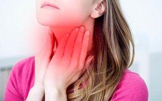 Гнойная ангина — основные причины, симптомы, диагностика и правильное лечение