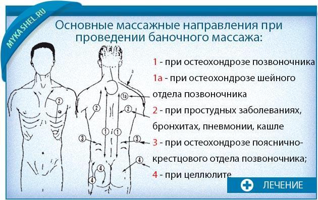 массажные направления при баночном массаже