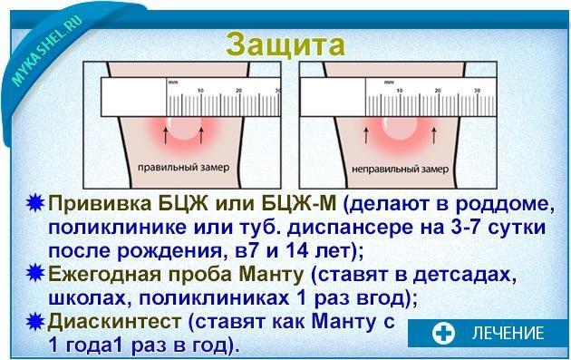 защита от кашля при тубике