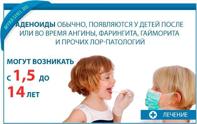 Аденоиды появляются у детей