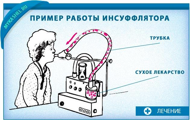 Инсуффлятор