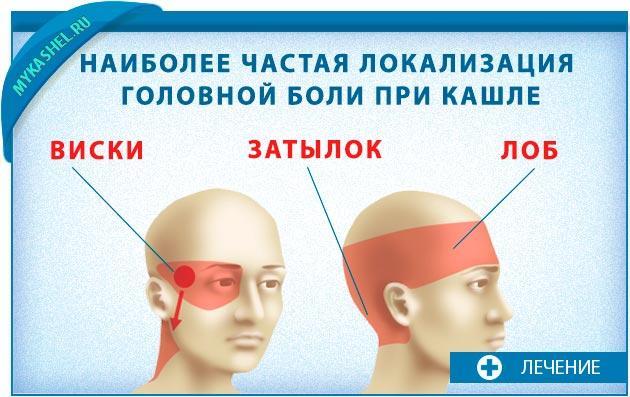Локализация головных болей при кашле