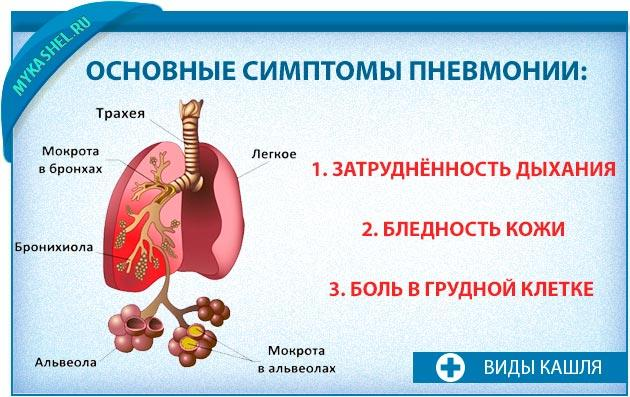 Симптомы пневмонии при приступообразном кашле
