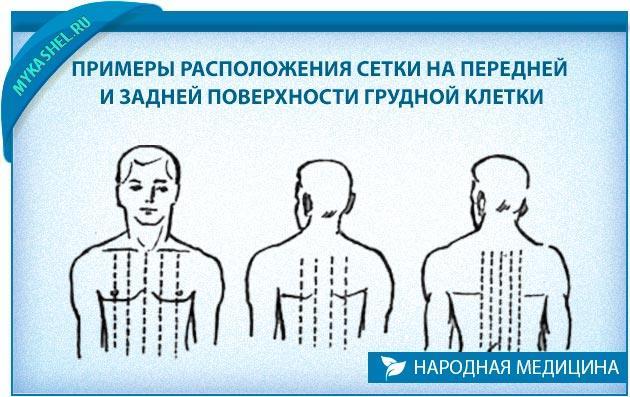 йод от кашля передняя и задняя грудина