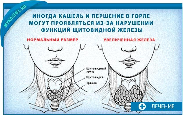 першение в горле и сухой кашель из-за щитовидка