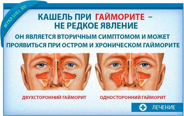 Кашель вторичный симптом гайморита
