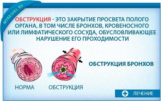 Обструкция при онкологии