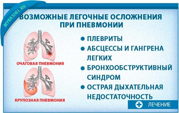 Осложнения кашля при пневмонии