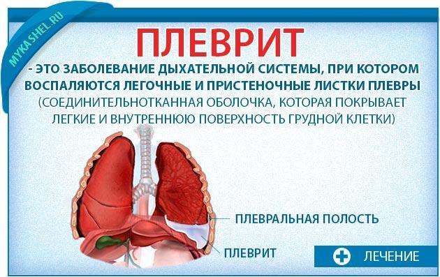 Плеврит при болях и кашле