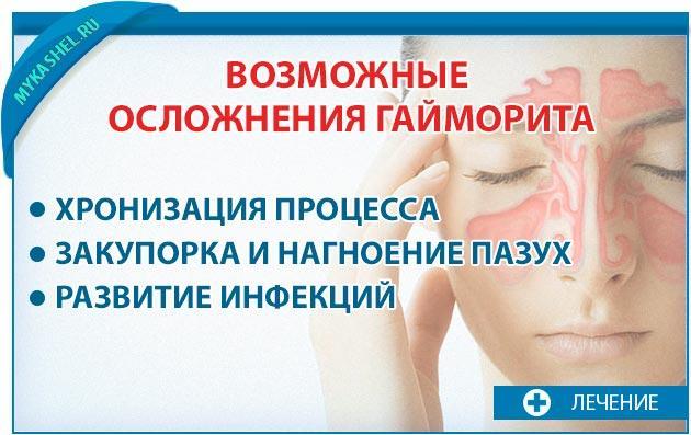 Возможные осложнения если не лечить гайморит