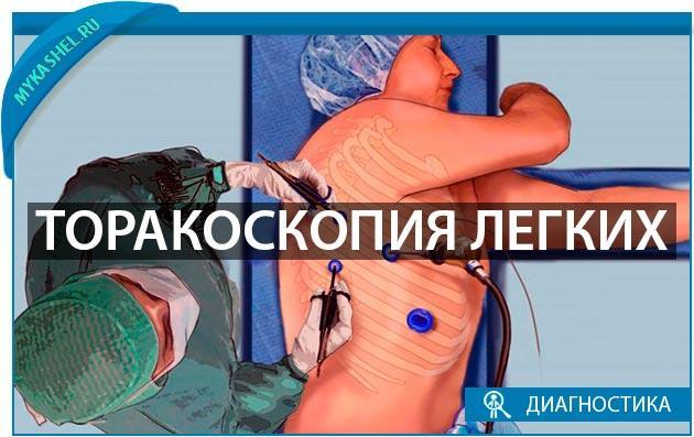 Торакоскопия легких