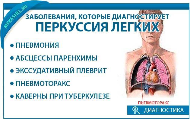 какие заболевания выявляет перкуссия легких