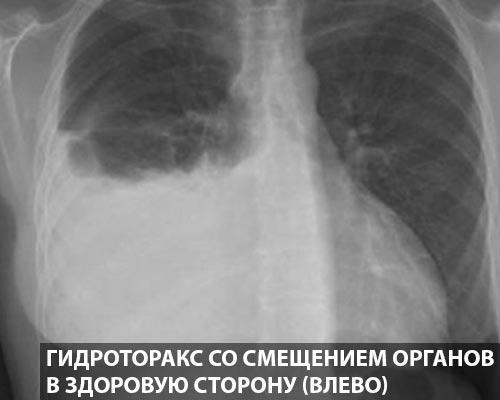 Гидроторакс со смещением органов в здоровую сторону (влево)