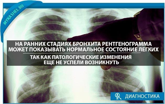 Нормальная рентгенограмма на-ранних стадиях ронхита