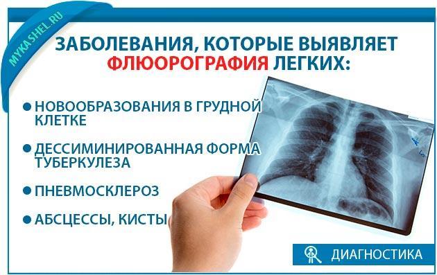Заболевания которые показывает флюорография
