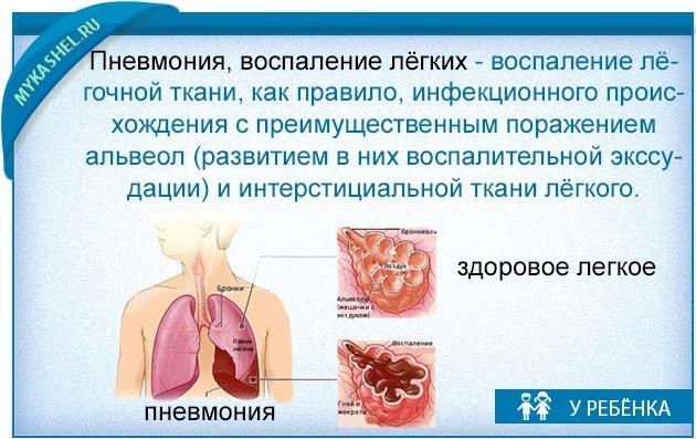распознаем кашель у ребенка