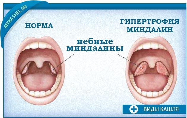 Гипертрофия небных миндалин