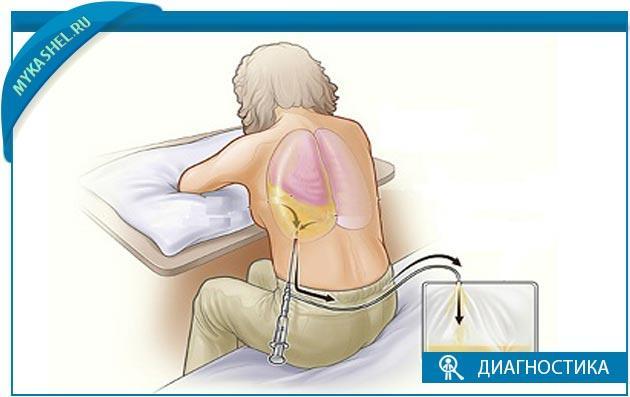 диагностика плевральная полость