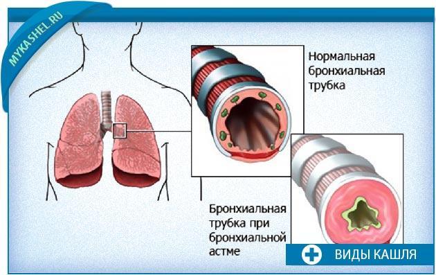 астматический кашель признаки
