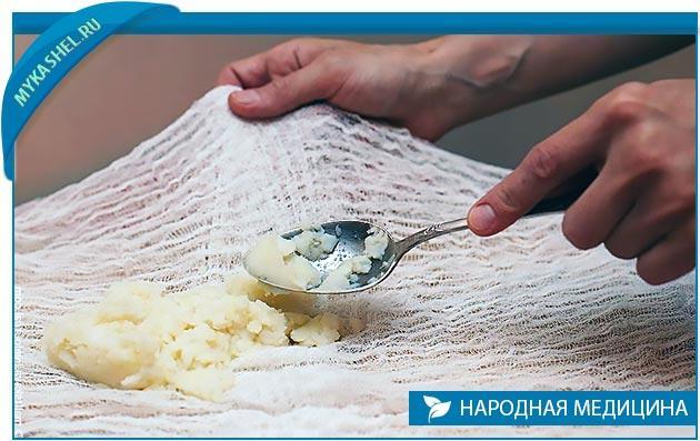 Компресс из картошки