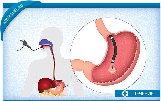 диагностика изжоги и соответственно кашля