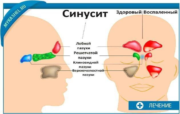 отличие здорового синусита от воспаленного