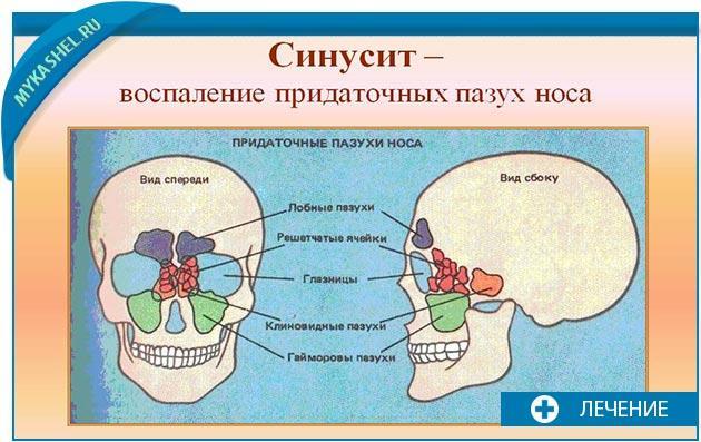 синусит и кашель при нем